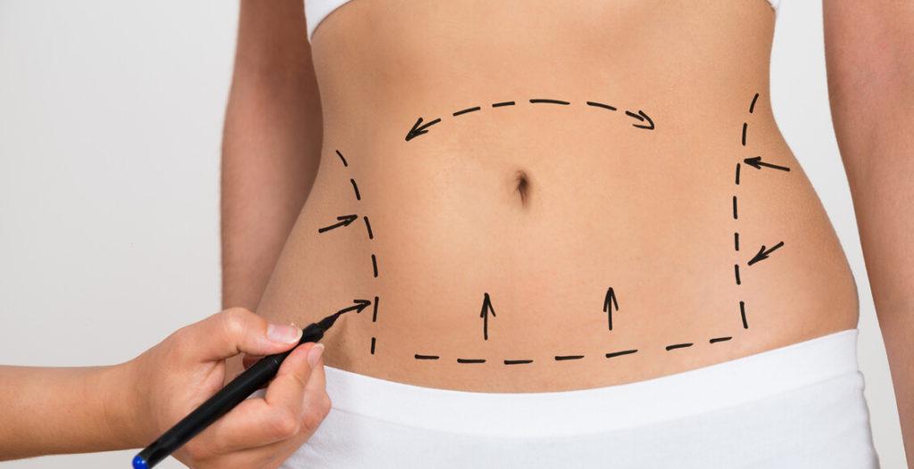جراحی ابدومینوپلاستی شکم چیست ؟