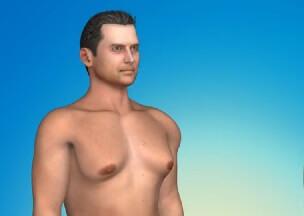 بزرگ شدن سینه مردان ژنیکوماستی