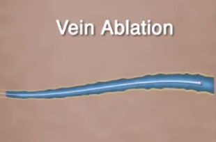 Vein ablation -تخریب وریدی