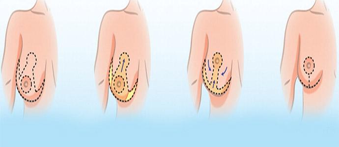 عمل ماموپلاستی سینه