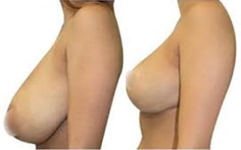 ماموپلاستی سینه