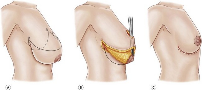 عمل ماموپلاستی
