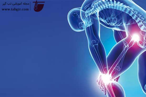 تشخیص بیماری آرتروز
