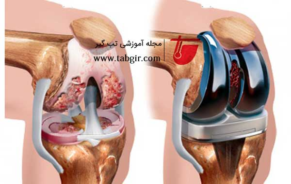 تعویض مفصل در بیماری آرتروز