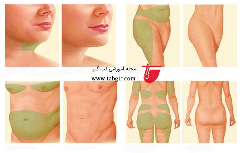 کاربرد عمل لیپوماتیک برای قسمت های مختلف بدن