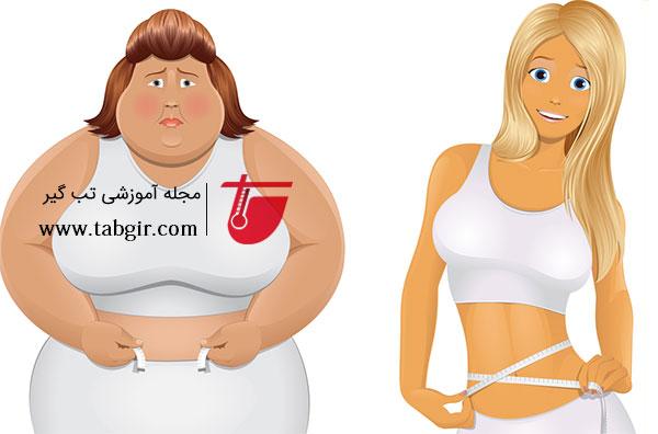 کاهش وزن با اسلیو معده