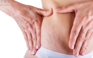درمان ترک های پوستی