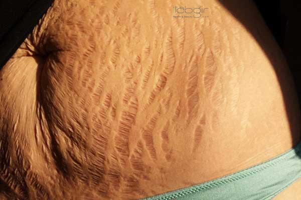 دلایل ایجاد ترک های پوستی