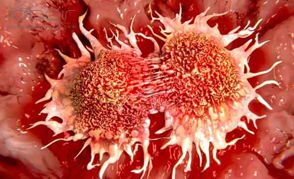 رژیم کتوژنیک و پیشگیری از سرطان