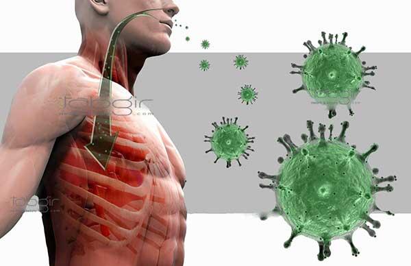 ویروس کرونا SARS